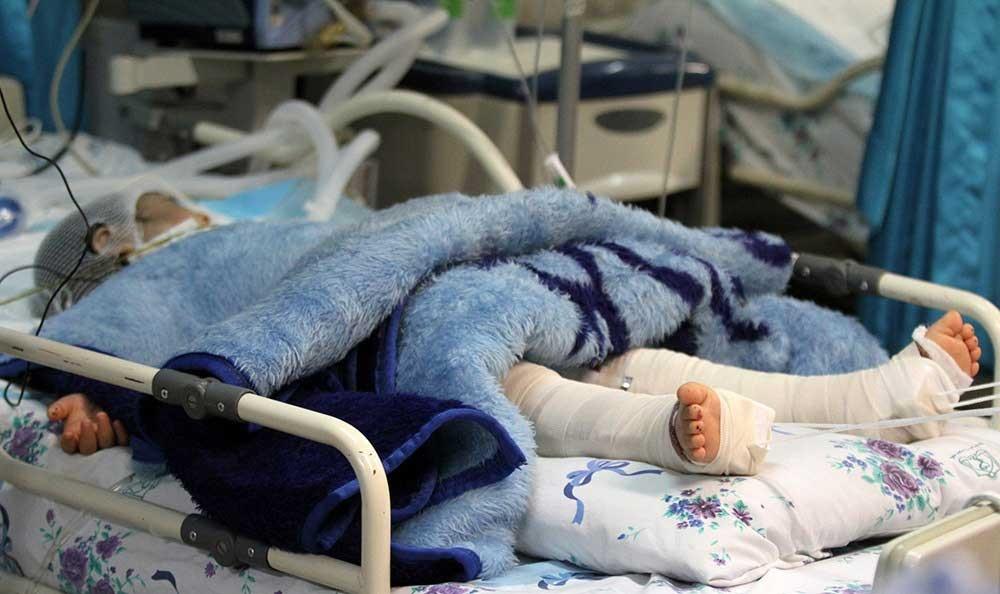 کودک مرگ مغزی شده توسط ناپدری