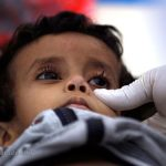 وبا به جان مردم یمن افتاد!
