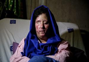 وضعیت سهیلا جورکش بعد جراحی
