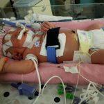 بوسه ای که بلای جان نوزاد 18 روزه شد!