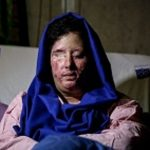 آخرین وضعیت سهیلا جورکش قربانی اسیدپاشی پس از عمل 7 ساعته!