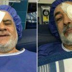 واکنش حداد عادل به عمل چشمش توسط وزیر بهداشت