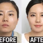 هزینه جراحی زیبایی, کادوی فارغ التحصیلی به دانشجویان کره جنوبی!
