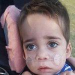 بیماری وحشتناک و نادر کودک یک ساله استرالیایی!