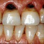 نوشیدنیهایی که دندانها را از بین میبرند