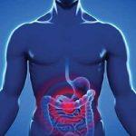 سندرم روده تحریکپذیر را جدی بگیرید