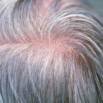 عوامل سفیدی زودرس موها چیست؟