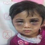 وضعیت زهرا کودک آزار دیده در خمینی شهر