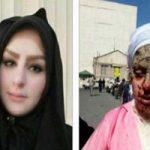 آخرین وضعیت درمان معصومه جلیلپور قربانی اسیدپاشی تبریز