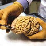 ماجرای زنده شدن پسر ۱۳ ساله بعد از مرگ مغزی