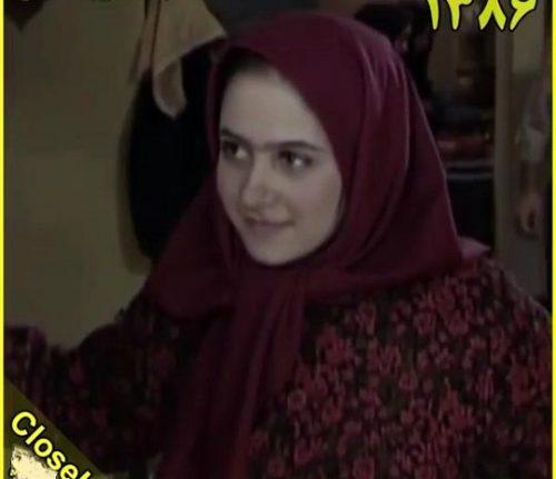 الناز حبیبی قبل از عمل زیبایی