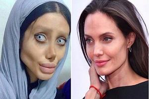 عکس های سحر تبر دختر ایرانی که بالاخره شبیه آنجلینا جولی شد!!