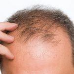 ترفندهای سریع الاثر برای توقف و درمان ریزش مو!
