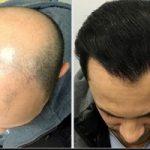 آیا می دانید کاشت مو چه عوارضی دارد!؟