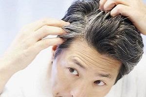 علت سفید شدن زودرس موها | آیا موهای سفید را می توان سیاه کرد؟