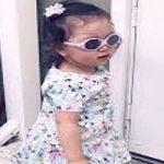 دختر مبتلا به سندرومی نادر و با چشمانی فوق العاده زیبا!