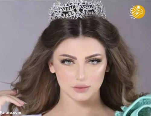 ملکه زیبایی