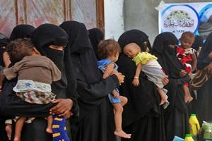 تصاویری تکاندهنده از قحطی و گرسنگی وحشتناک در یمن (۱۶+)