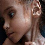 جان باختن دختر یمنی که توجه جهان را به تجاوز بیرحمانه عربستان معطوف کرد!!
