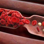 مهمترین نشانههای سرطان خون که باید جدی بگیرید!