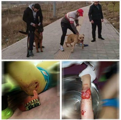 حمله سگ به دختر بچه