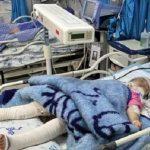 کودک آزاری در مشهد با سیم داغ و سیگار
