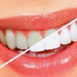 ترفندهای خانگی و موثر برای برق انداختن دندان ها!