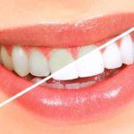 ۷ راه حل سفید کردن دندان ها بدون نیاز به دندانپزشک!