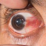 ناخنک چشم بیماری که چشم را زشت میکند! +راه درمان و پیشگیری