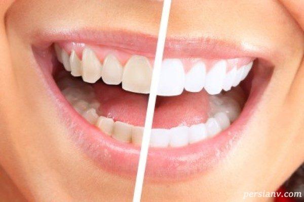 ترفندهای خانگی برای حفظ سلامت دندان که لبخند زیبا به شما هدیه میکند!