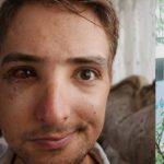 گردشگر آلمانی و پشت پرده کتک خوردنش در مازندران | ردپای مجری زن در ماجرا!