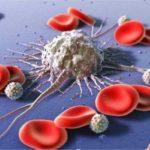 درمان سرطان خون در شیراز با خون بند ناف برای اولین بار در ایران!!