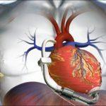 توصیه هایی بسیار مهم در رابطه با نارسایی قلبی