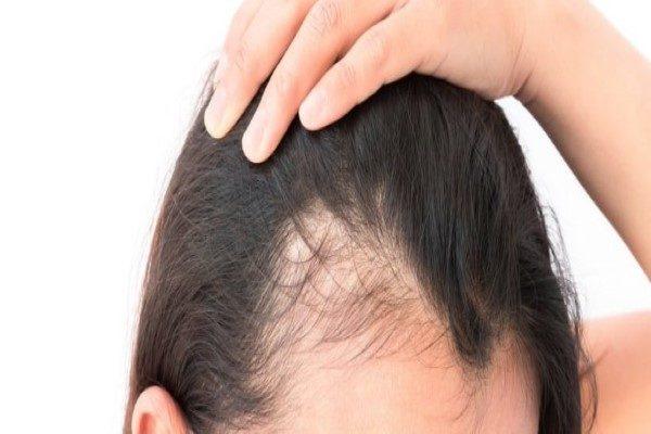 تقویت رشد مو