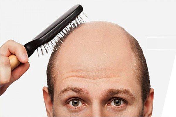تقویت رشد مو با فرمول های طبیعی + علل ریزش مو