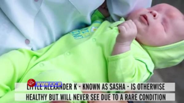 نوزاد بدون چشم