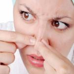 درمان دانه های سرسیاه پوست با چند روش طبیعی و ساده!