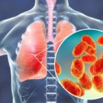 بهترین آنتی بیوتیک برای درمان عفونت ریه از نظر طب سنتی!