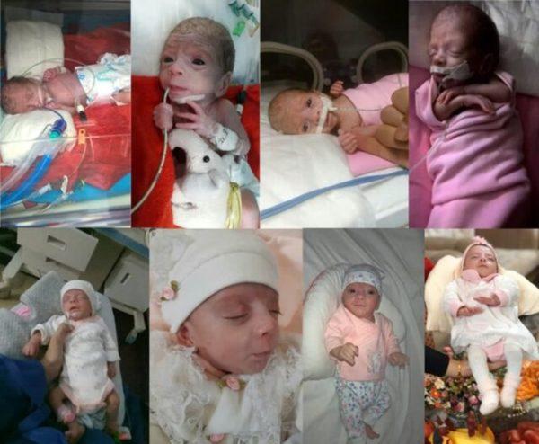 نوزاد نیم کیلویی