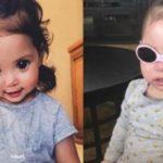 چشمان زیبای دختر بچه که بخاطر بیماری زیبا شده است