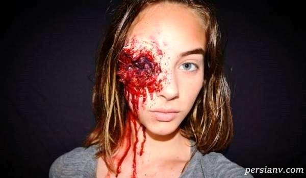 چهره ترسناک و عجیب دختر ۱۵ ساله