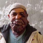 مرد ۴۷ساله با این چهره وحشتناک به دنبال عشق واقعی