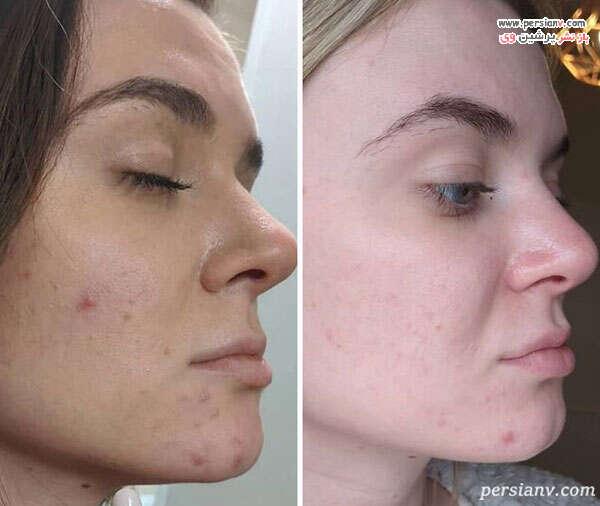 پذیرفتن پوست واقعی