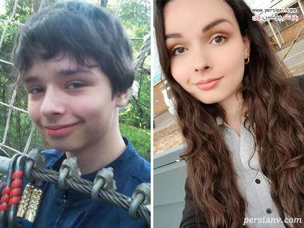تغییر جنسیت به دختر