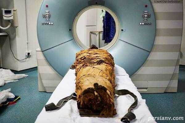 شگفتی از کشف زنی با جنینی در داخل شکم در مومیایی دو هزار ساله