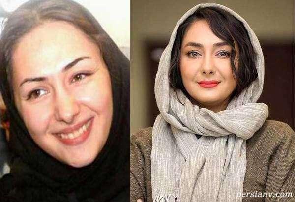 هانیه توسلی قبل از عمل زیبایی