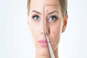 تغییرات پوست در بارداری