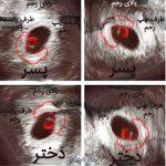 روش هایی جالب برای فهمیدن جنسیت جنین از شمردن ضربان قلب تا …