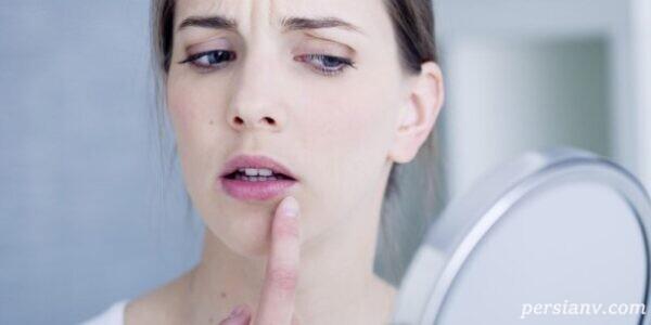 ویروس تبخال در بارداری