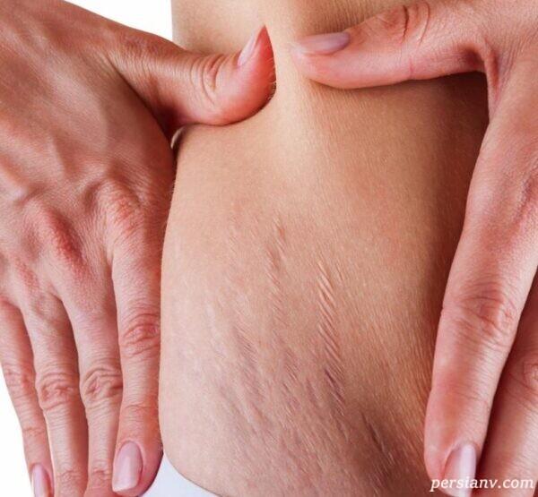 ترک پوست در بارداری